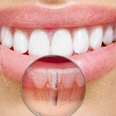 implantondontia