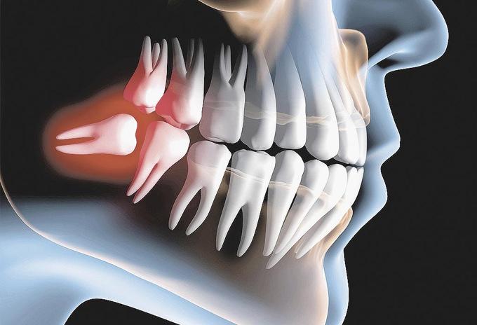extracao-3-molar